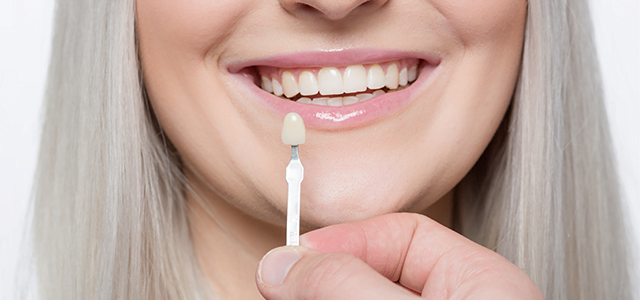Myths and misconceptions about dental veneers